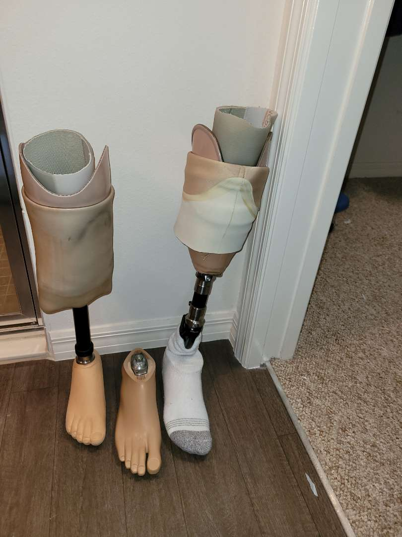 Lot # 139 (2) Prosthetic Legs & Foot